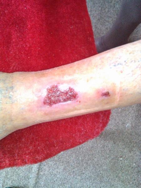 L'ulcère de la jambe, vous voulez savoir?